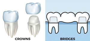 dental-crowns-melbourne