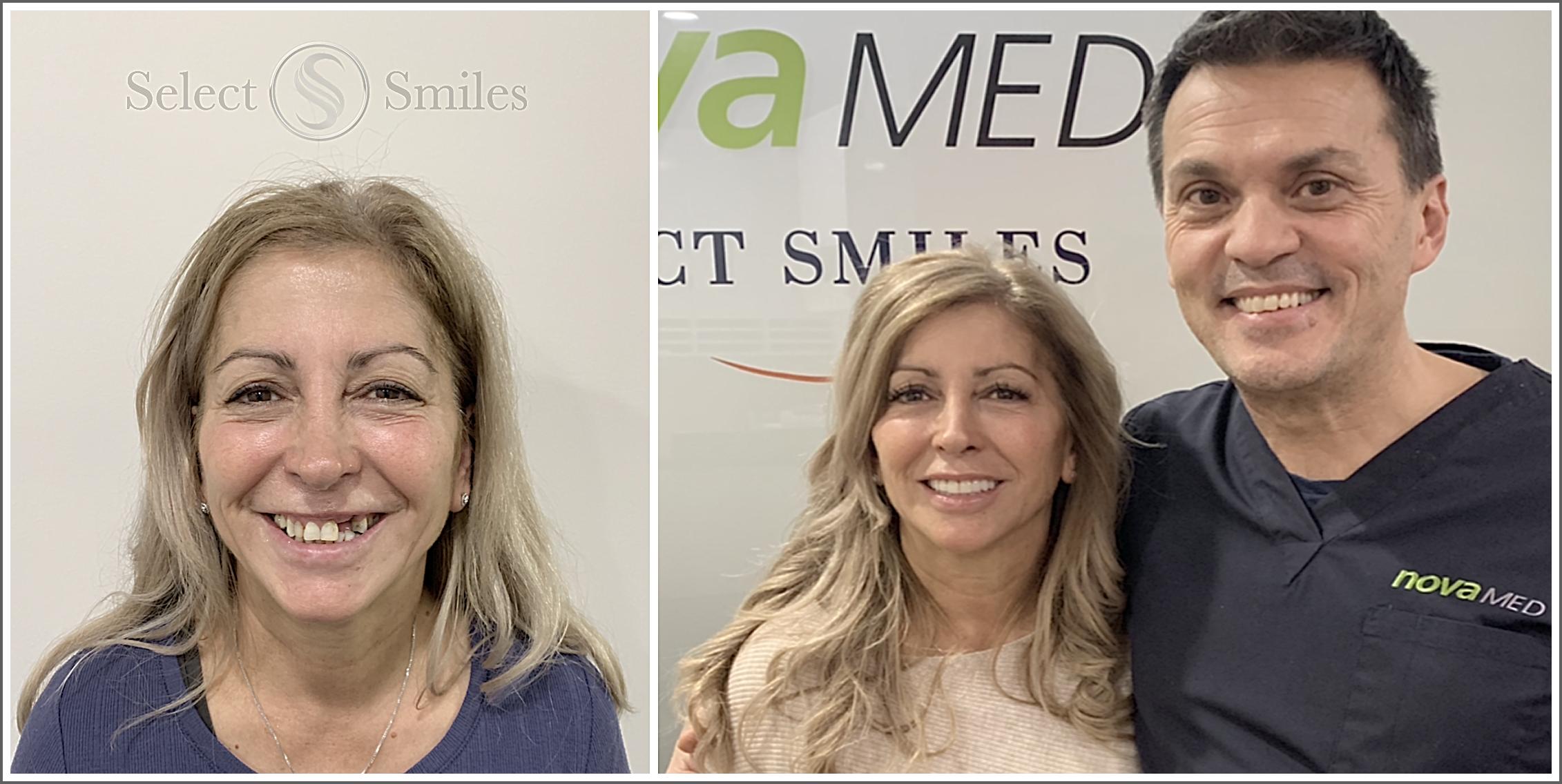 dental-implants-melbourne-client